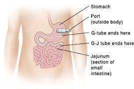 feeding-tube2